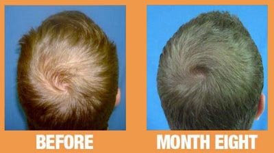 Can Prp Cure Hairloss Wembly Clinic