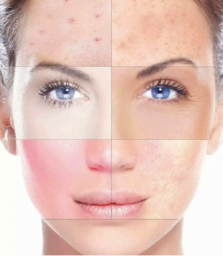Image result for Skin Rejuvenation