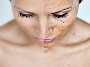 Before & After Chemical peel