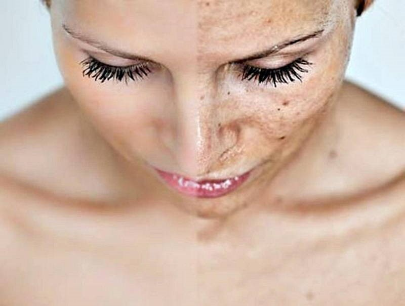 important things to know before having a chemical peel