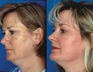 Chemical facial peel recuperation period think