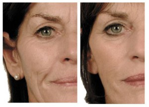Dermal Fillers Wrinkle Effect