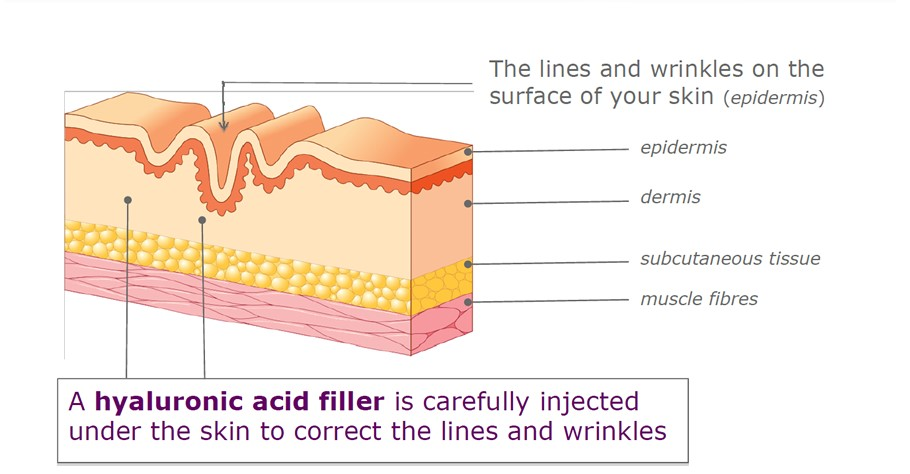 Uses Of Dermal Fillers