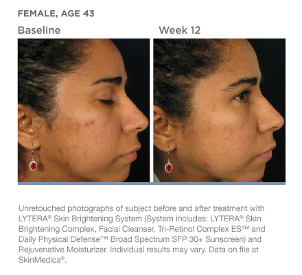 The Effect Of Retinol On The Skin Wembly Clinic