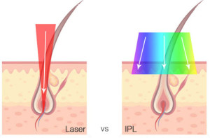 whats-better-laser-or-ipl-hair-removal