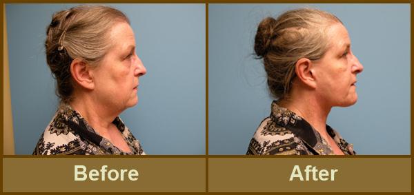 thread procedure Facial lift