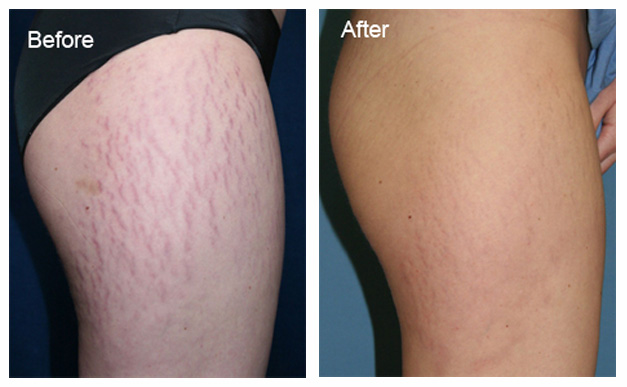 Stem cells for stretch marks | Wembly Clinic