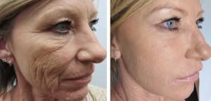 PRP Skin