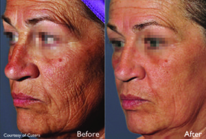 Pearl-Fractional-laser-treatment-Left-Cheek-BA