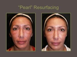 Pearl-Resurfacing