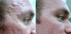 Dermapen-Before-and-After