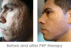 PRP-before after