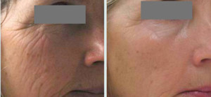 before-after-dermapen-2