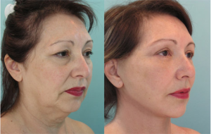 thread-lift-before-after