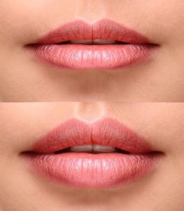 lip-filler-before-after1