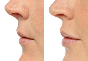 lip filler before-after2