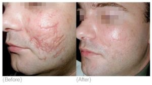 Prp For Scarring Part 3 Wembly Clinic