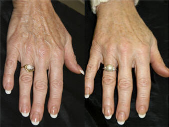 Ageless Hands Do Your Hands Tell Your Age Wembley Clinic
