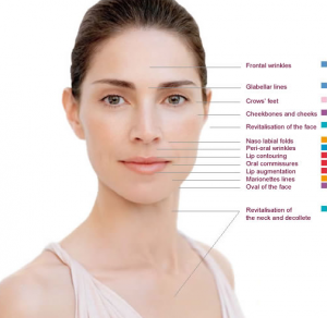 How Dermal Fillers Work