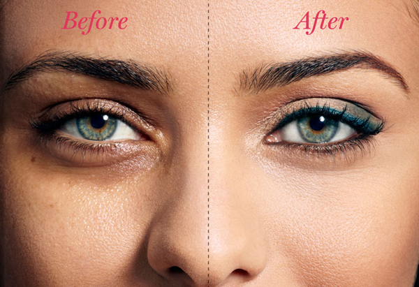 Pain free Botox and under Eye Dermal Fillers | Wembley Clinic