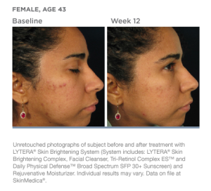 lytera-skin-brightening-system-beforeafter-02