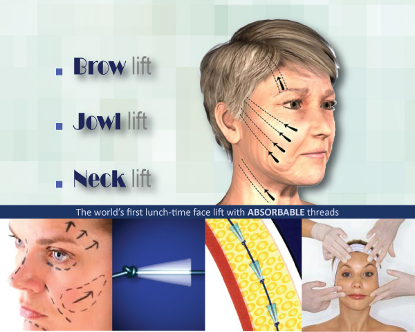 The Wembley MediSpa now offer the Non Surgical facelift