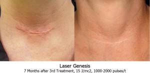 Laser-genesis-neck-scar