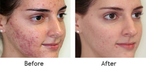 Sever-Acne-Befor-and-After-Treatment-5