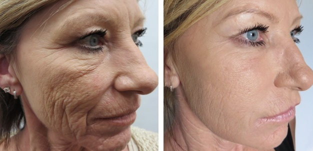 Revolutionise Your Skin With Stem Cell Treatment Wembley