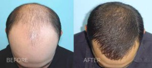 PRP-before-after Hair