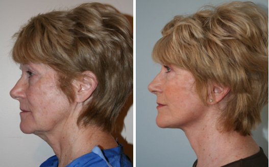 Silhouette Lift - The Lunch Time Facelift | Wembley Clinic