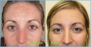 Hormonal pigmentation